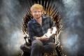 Game of Thrones 7 - Nuovi dettagli sull'apparizione di Ed Sheeran