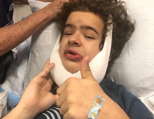 Stranger Things: Gaten Matarazzo sta bene dopo l'operazione